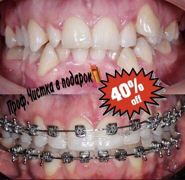 купить бус в рассрочку в Кыргызстан: Стоматолог | Брекет системы, пластинки | Консультация