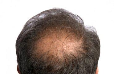 Bakı şəhərində Saç Tökülməsinə Sonnnn