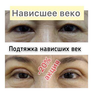 Красота и здоровье - Кыргызстан: Косметолог | Ботокс, Биоревитализация, Брыли | С выездом на дом, Гипоаллергенные материалы, Сертифицированный косметолог