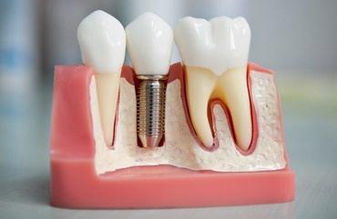Имплантация в стоматологии. Установка в Бишкек