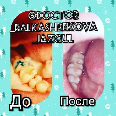 """стоматологических услуг в Кыргызстан: Новогодняя Акция Все виды стоматологических услуг!  Семейная клиника """""""