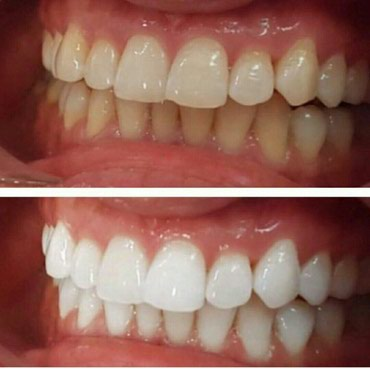 Dentist | Whitening