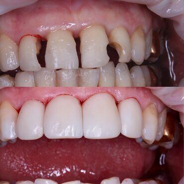 панорамный рентген зубов бишкек цена в Кыргызстан: Стоматолог | Лечение десен | Консультация