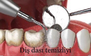 вакансии ассистента стоматолога в Азербайджан: Munasib qıymetlerle xıdmetinizdeyik buyurun gelin