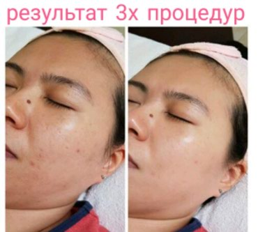 Процедура мезо BB!эффект тонального крема на год в Бишкек