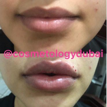 Увеличение губ . Косметолог . в Бишкек