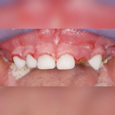 Стоматолог   Реставрация, Протезирование, Чистка зубов   Круглосуточно