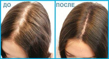 Уход за телом - Унисекс - Душанбе: Если есть какие-либо проблемы с любой волосистой частью кожи, то