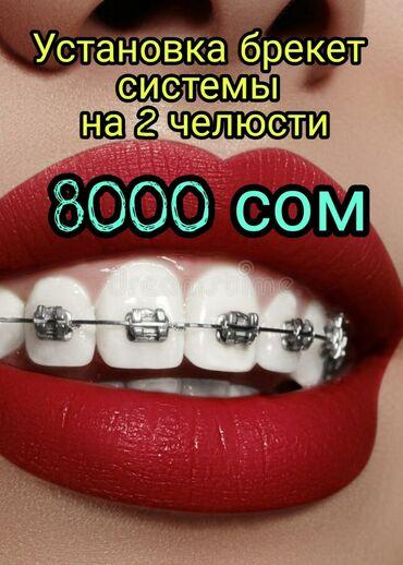фото детские в Кыргызстан: Стоматолог   Реставрация, Протезирование, Чистка зубов   Круглосуточно