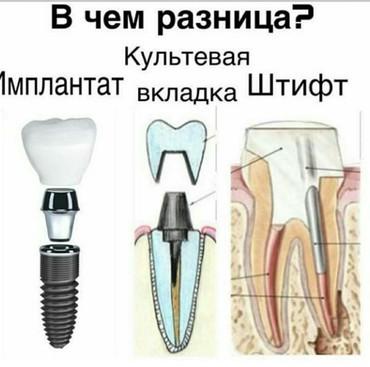 Имплантация зубов в Бишкек