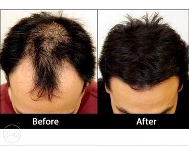 Косметика - Унисекс - Душанбе: Сaboki – загуститель для волос, который маскирует проблемные места