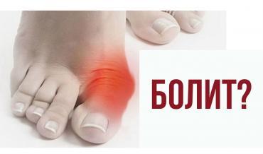 Вальгусные шины - Кыргызстан: Корректоры от косточки на ноге!Ночные и дневныеЦены от 350 до 2020