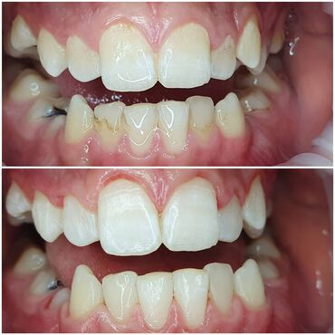 ассистент стоматолога бишкек in Кыргызстан | СТОМАТОЛОГИЯ: Стоматолог | Реставрация, Чистка зубов | Консультация