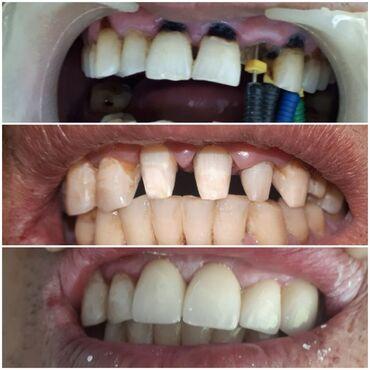 Все виды стоматологических услуг обращайтесь по тел