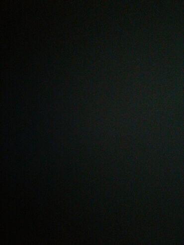 candela lazer aparati satilir in Azərbaycan | TIBBI AVADANLIQ: Lazer aparati tecili satilir yenidi 10 ay zemaneti var 18000 mine
