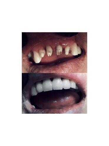 ассистент стоматолога бишкек in Кыргызстан | СТОМАТОЛОГИЯ: Стоматолог | Протезирование | Консультация, Круглосуточно