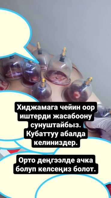 астон мартин в бишкеке в Кыргызстан: Хиджама аял заты үчүн жасайбыз.Стерилдүү, таза.Бир гана колдонулуучу