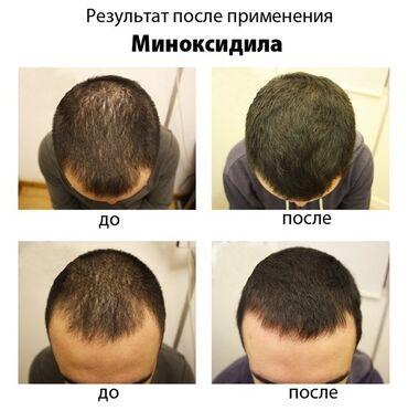 Уход за телом - Унисекс - Душанбе: Minoxidil для роста бороды и волос на голове.  Миноксидил применяется