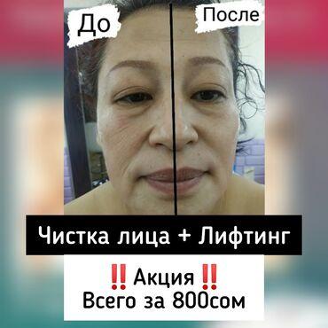 приоритет здоровье в Кыргызстан: Косметолог   Удаление гусинных лапок, Удаление носогубных складок, Чистка кожи   Сертифицированный косметолог