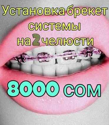 услуги фрезеровщика в Кыргызстан: Стоматолог | Реставрация, Протезирование, Чистка зубов | Консультация