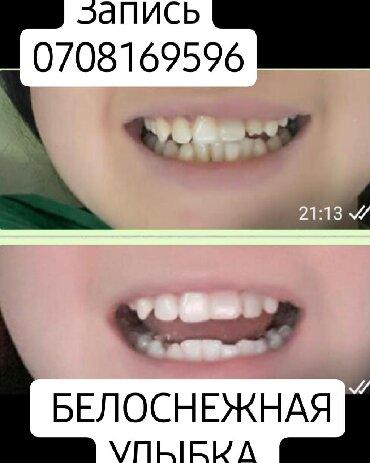 Отбеливание зубов скидка  З х этапная чистка зубов и отбеливание