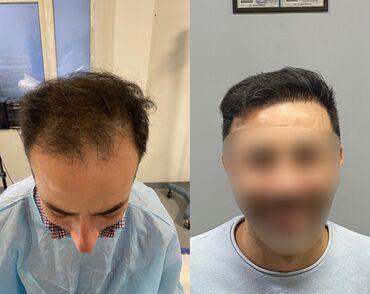 веки без операции в бишкеке в Кыргызстан: Пересадка волос  Впервые в Кыргызстане пересадка волос !!!  по уникал