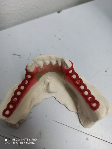 гелевый протез в Кыргызстан: Стоматолог   Протезирование, Другие услуги стоматолога   Консультация, Круглосуточно
