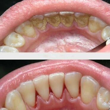 приму в дар породистую собаку в Кыргызстан: Стоматолог | Реставрация, Протезирование, Чистка зубов | Консультация