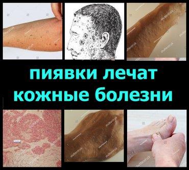 Лечение кожных болезней пиявками. в Бишкек