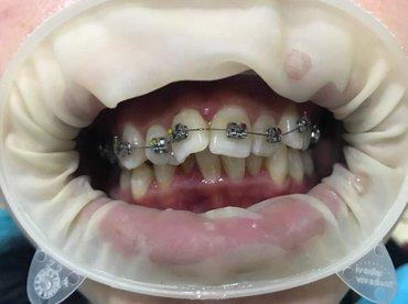 Мы устраняем дефекты зубного ряда как в Бишкек