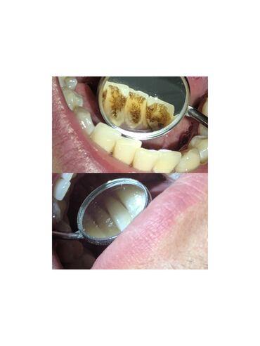 виниловые пластинки бишкек in Кыргызстан | ВИНИЛОВЫЕ ПЛАСТИНКИ: Стоматолог | Реставрация, Протезирование, Чистка зубов | Консультация