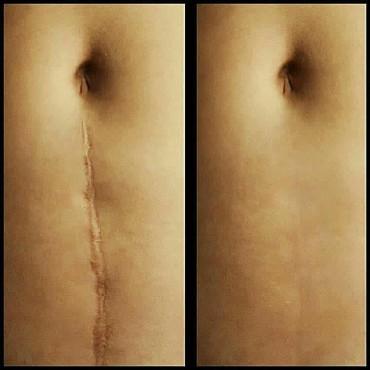 Yara,emeliyyat,capiq,hamilelikde,kilo alib vermekden yaranan catlarin