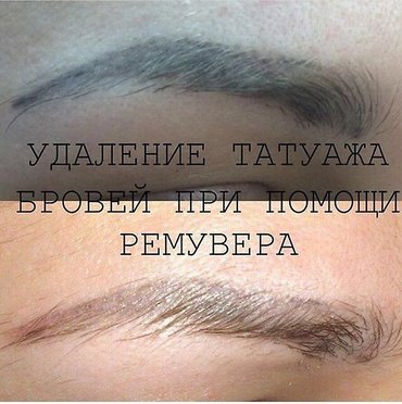 Удаление татуажа ремувером ! в Бишкек
