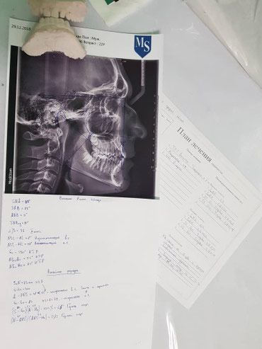 Брекеты со скидкой,стоматолог,Брекеты в Бишкек