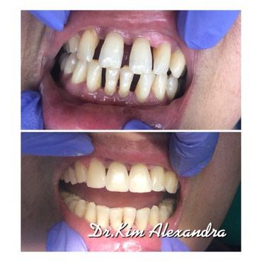 стоматологических услуг в Кыргызстан: Все виды стоматологических услуг! безболезненное и безопасное лечение