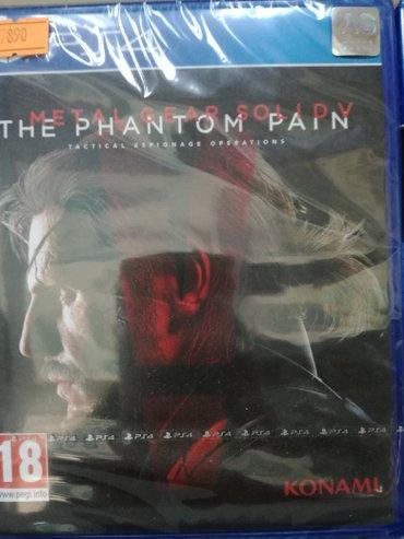 Bakı şəhərində phantom pain