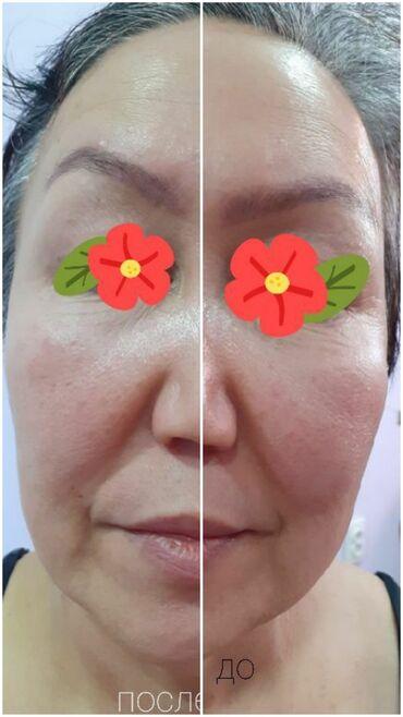 Лапы для ног - Кыргызстан: Косметолог | Лифтинг