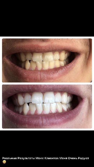 Аппараты для отбеливания зубов в домашних условиях! Гарантированный