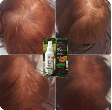 KOSALIM- rast do 10000 novih dlakaNeka kosa bude vaš najljepši