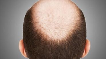 Dexe Hair losion za ponovni rast kose kao i za jačanje i protiv - Belgrade