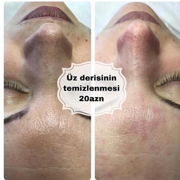 Bakı şəhərində Üz derisinin temizlenmesi-20AZN