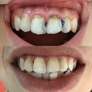 вакансии ассистента стоматолога в Азербайджан: Dişlerin estetik restavrasiyasi