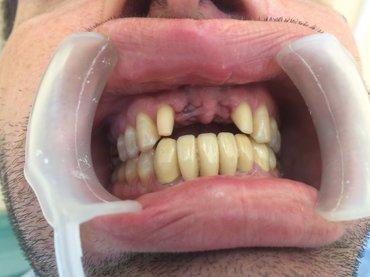 Стоматолог : Реставрация передних зубов Изготовление металлокерамики