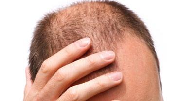 Bakı şəhərində Saç tökülməsinə sonnn