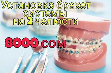 виниловые пластинки бишкек in Кыргызстан | ВИНИЛОВЫЕ ПЛАСТИНКИ: Стоматолог | Брекет системы, пластинки | Консультация, Круглосуточно