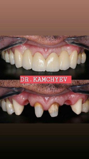 услуги стоматолога в Кыргызстан: Стоматологияработаем не смотря на карантин!!!бесплатная