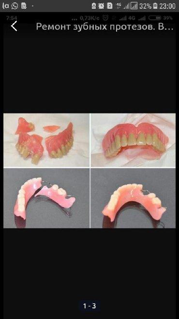 Ремонт зубной протезы 300с
