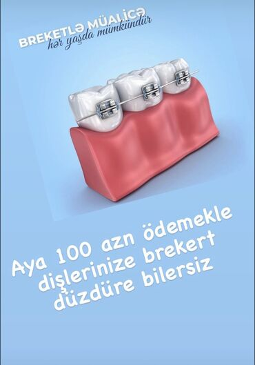 вакансии ассистента стоматолога в Азербайджан: İlkin ödəniş 300 azn olmaqla hər ay 100 azn ödeyerek dişlərinizə