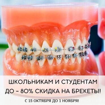 моторист бишкек отзывы in Кыргызстан | СТО, РЕМОНТ ТРАНСПОРТА: Стоматолог | Брекет системы, пластинки | Консультация