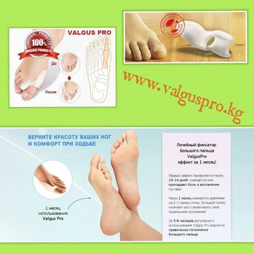 264 объявлений: Корректоры для большого пальца ноги от вальгусной деформации(косточки
